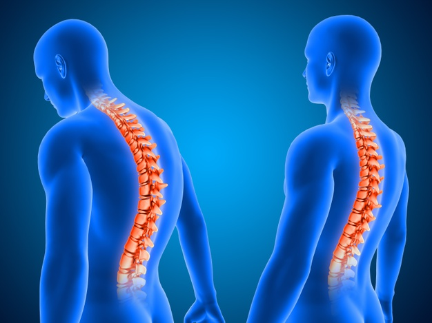 The importance of good posture to reduce joint pain